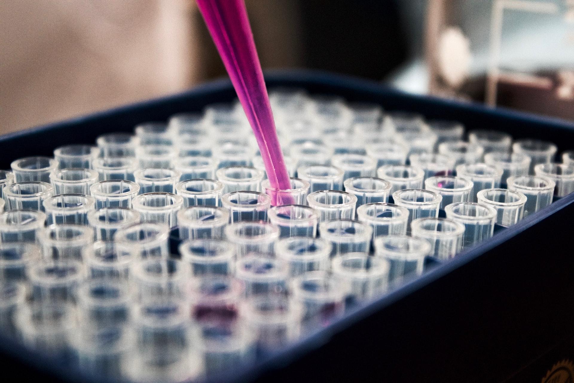 Antitijela na koronavirus razvilo 26 posto Zagrepčana